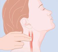 karotissinusmassage